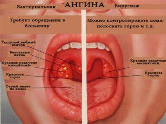 Ангина и коронавирус отличия