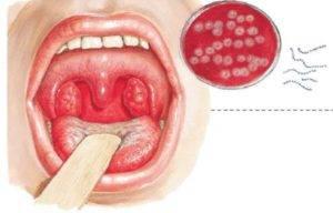 Ангина при коронавирусе