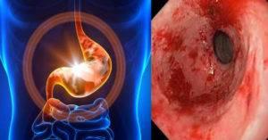 Арбузный желудок симптомы