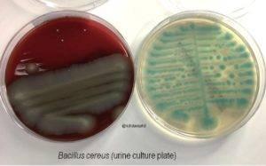 Bacillus cereus toyoi