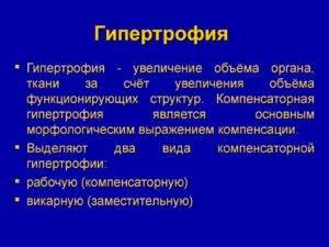 Гипертрофия слизистой оболочки желудка