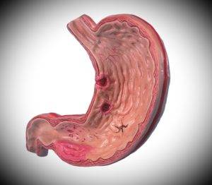 Хроническая эрозия желудка
