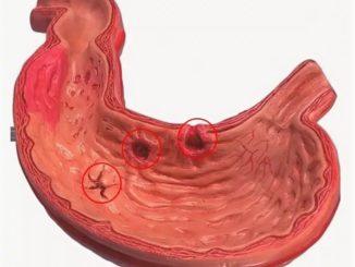Хроническая эрозия желудка причины