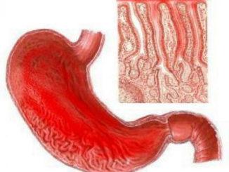Изменение слизистой оболочки желудка