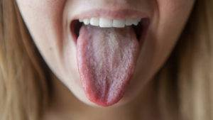 Язык обложен налетом