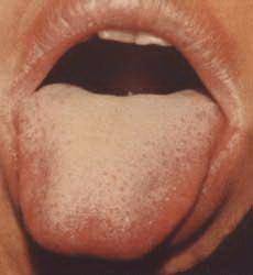 Язык обложен налетом причины