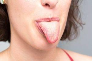 Язык обложен налетом причины локализация