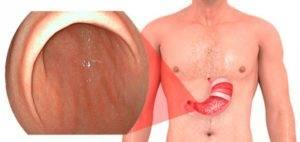 Очаговый бульбит желудка симптомы и лечение