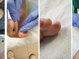 Онемение пальцев при коронавирусе и посинение