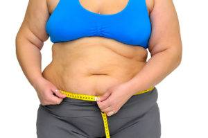 Ожирение и лишний вес - частые причины изжоги
