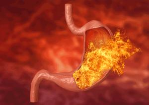 Почему горит в желудке причины