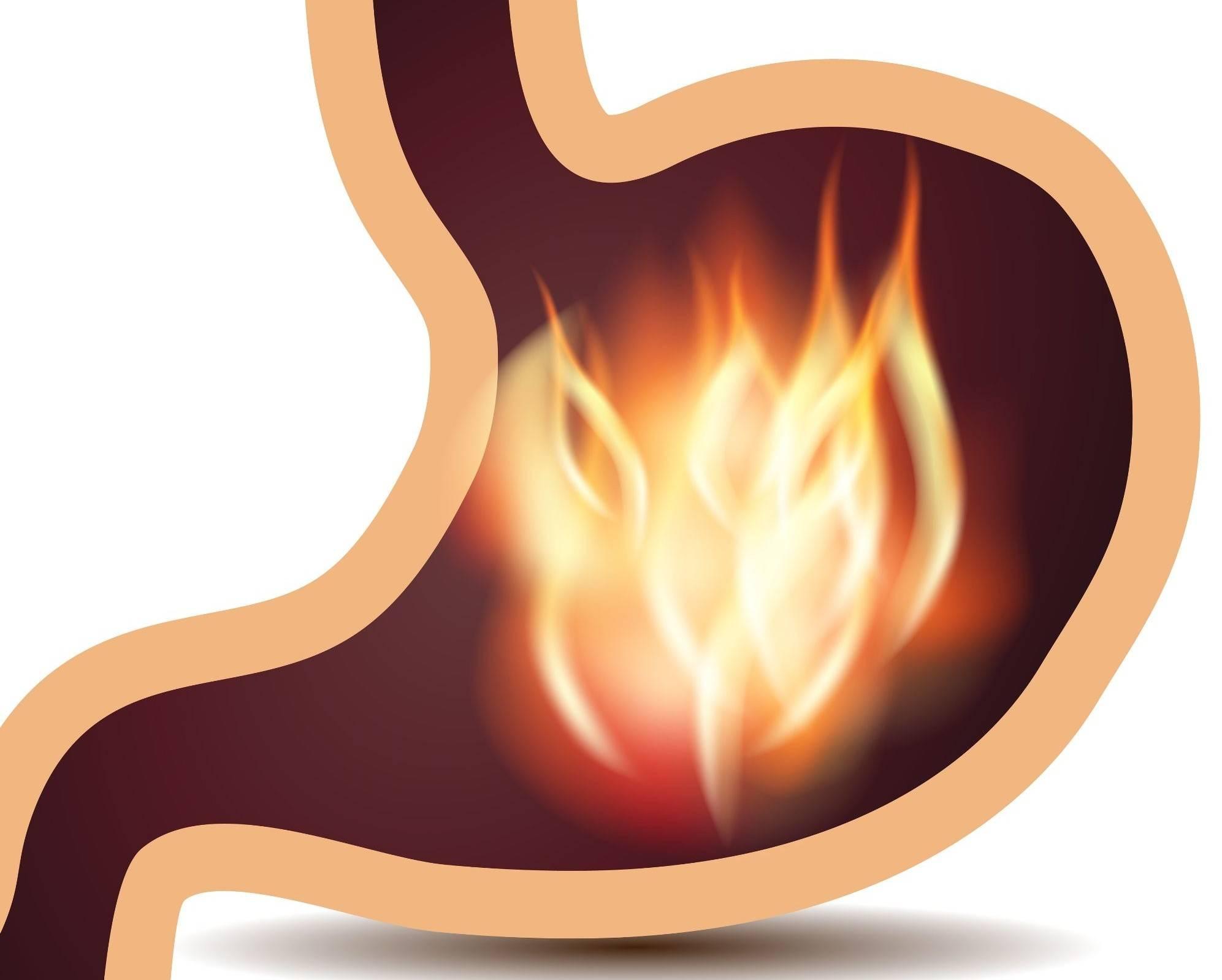Почему горит желудок