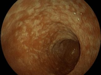 Поверхностная гастропатия желудка