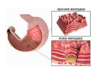 Продукты при эрозии желудка