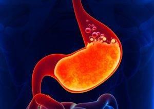 Выработка соляной кислоты в желудке механизм