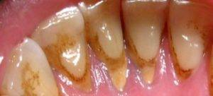 густой налёт на зубах и язык
