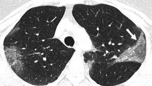 рентген при коронавирусе что показывает