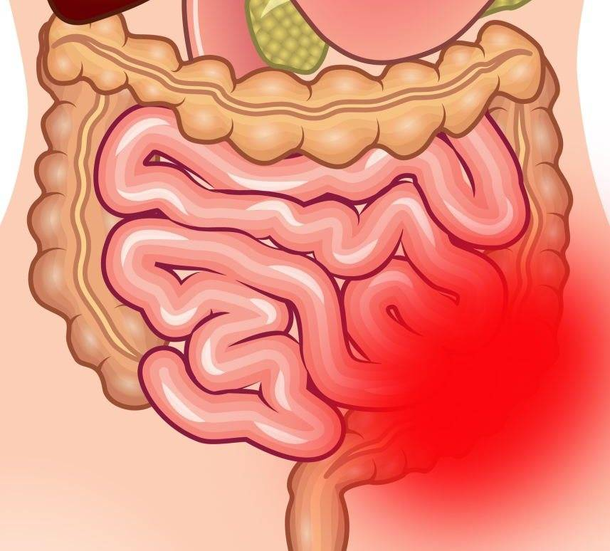 Илеус инепроходимость кишечника