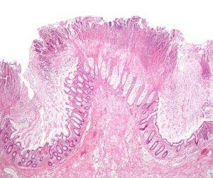 Изображение псевдомембраны в толстой кишке из Wikimedia Commons