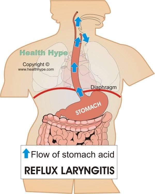 Ларингофарингеальный рефлюкс