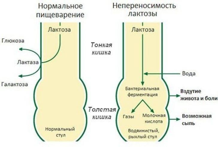 Непереносимость лактозы причины