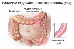 Раздражение толстой кишки