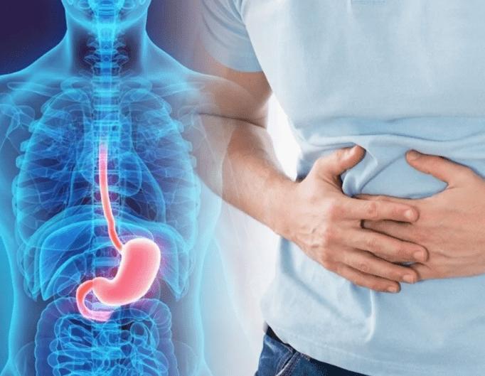 Синдром раздраженного кишечника с диареей