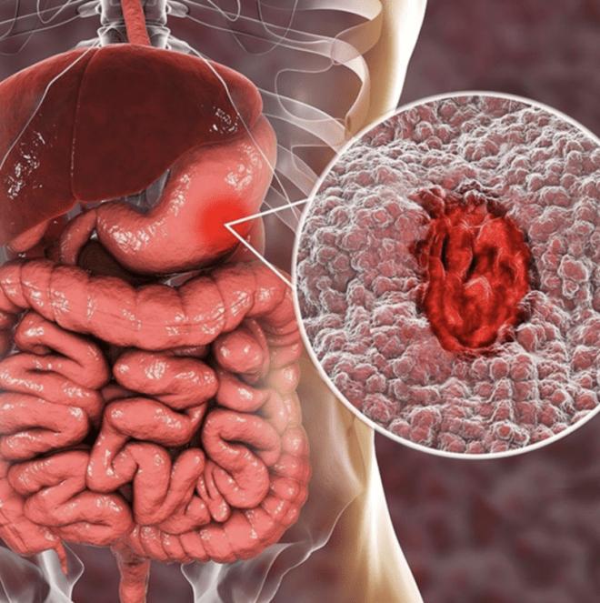Заболевания желудка больной желудок