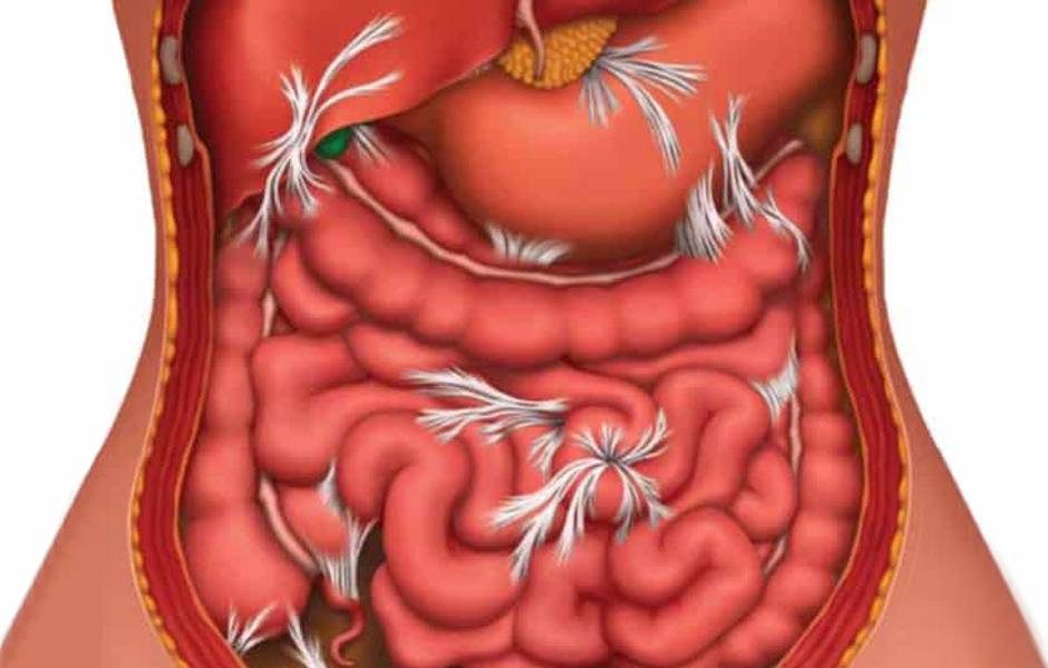 Закупорка желудка симптомы