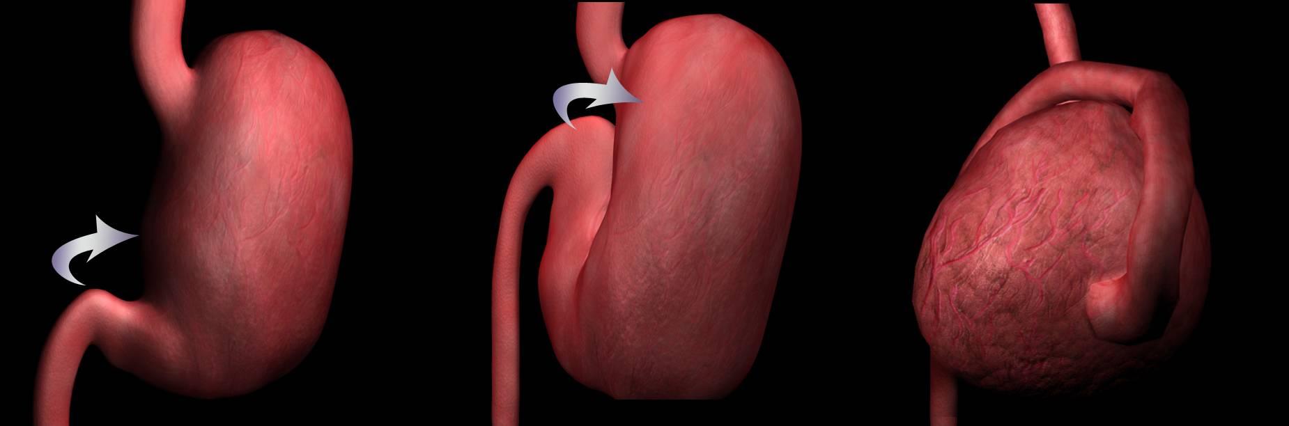 Заворот желудка у человека
