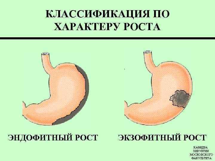 Злокачественный рост желудка