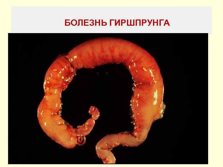 болезни Гиршпрунга