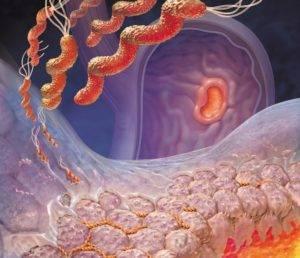 Инфекция желудочно-кишечного тракта
