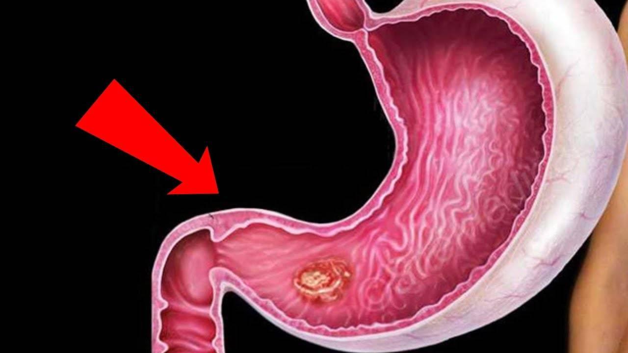 карцинома желудка