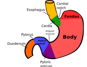 заворот желудка