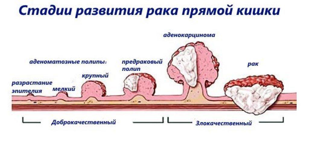 Аденоматозный рак