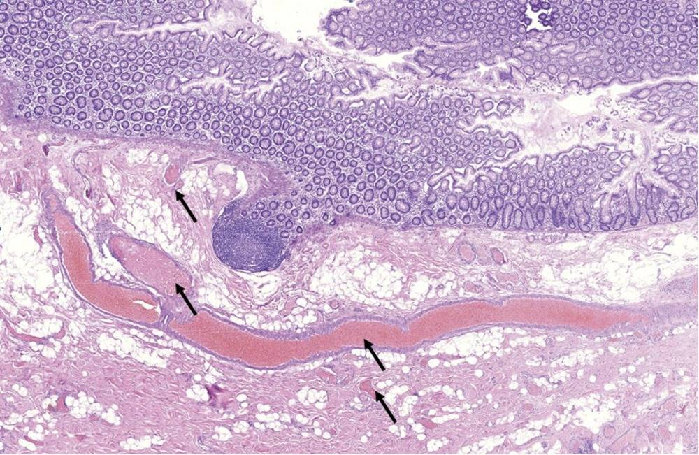 Ангиодисплазия кишечника причины