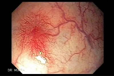 Ангиодисплазия кишечника