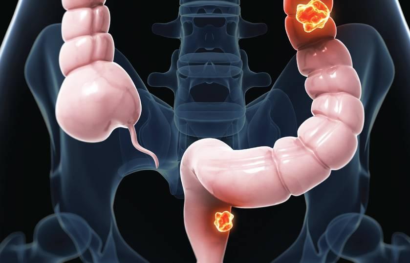 Ангионевротический отек кишечника