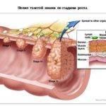 Факторы риска рака толстой кишки