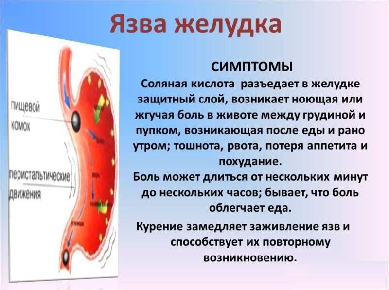 Характерные боли при язве желудка