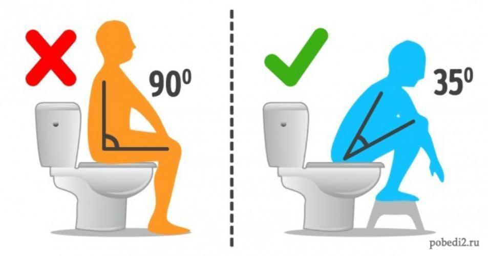 Как правильно сидеть на унитазе фото