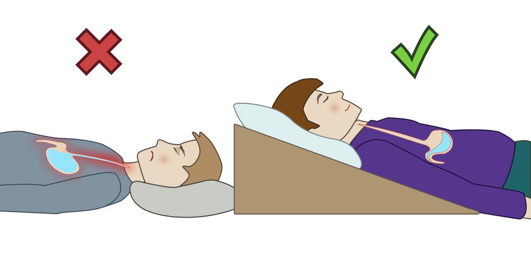 Как спать при ГЭРБ