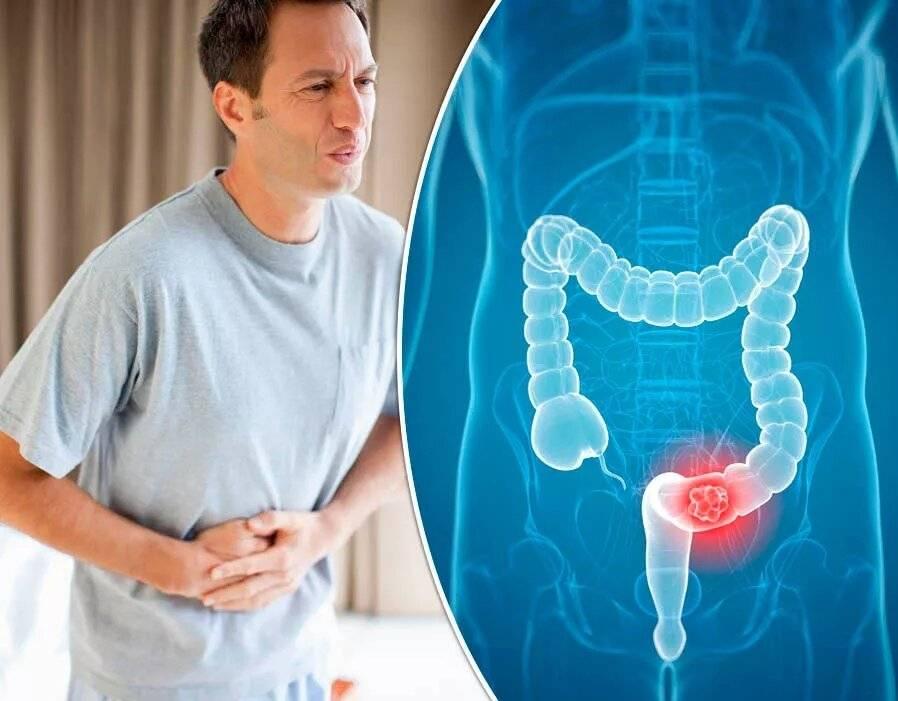 Колоректальный рак симптомы