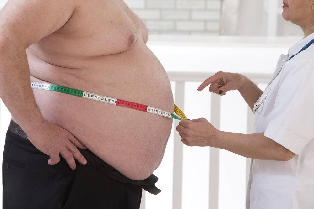 Ожирение рефлюкс