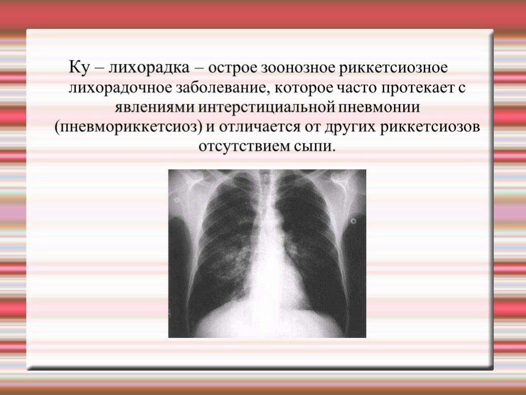 Q лихорадка