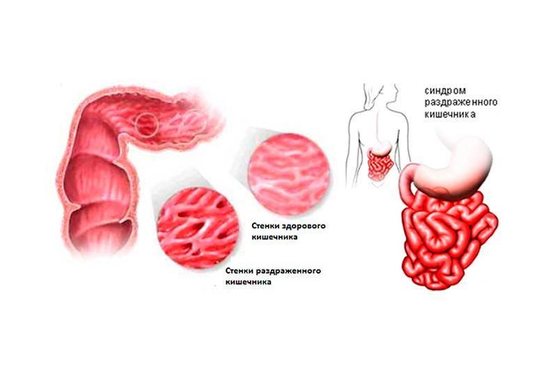 Синдром раздраженного кишечника причины