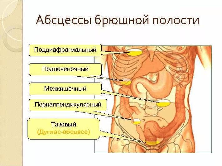 Внутрибрюшной абсцесс