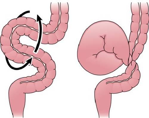 Заворот кишечника причины