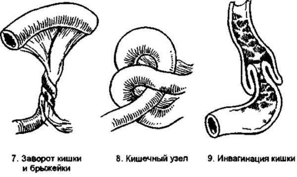 Заворот кишечника типы